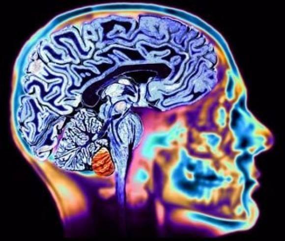 Curso «Prevención, intervención y toma de decisiones en la enfermedad de Alzheimer»